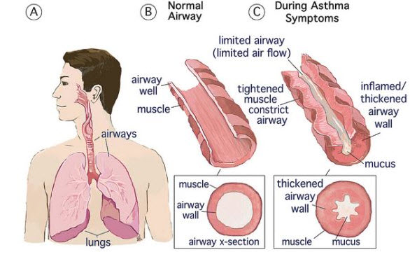 allergy triggers that may be caused by mold or other allergens