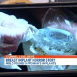 Mold in Breast Implants